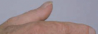 Clubbed thumb nail