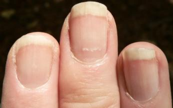 Vitamin B12 and Fingernails | Health Boundaries B12 Deficiency Nails