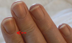 Fingernails_Dec_23 250 Arrow