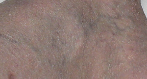 July_17_2006_vericose_veins_and_garden_Cropped_20 Scale 2014