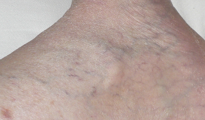July_30_varicose_veins_after_serrapeptaseCropped_2 Scale 2014