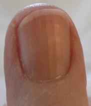 Fingernail pictures showing B12 levels | Health Boundaries B12 Deficiency Nails