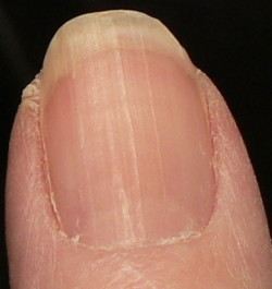 Right Thumb Ridges 3 10 07 Cropped Fingernail Pictures