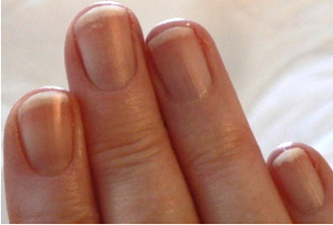 RightFingernailsDec24pmlighterCropped 300
