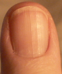ridges on thumbnail