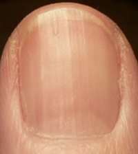 Ridges on fingernails vitamin deficiency - Awesome Nail B12 Deficiency Nails