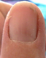 Right Thumb001 6 20 07 CroppedSmPro Fingernail Pictures