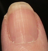fewer ridges toward bottom of nail