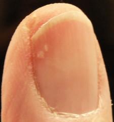 Vitamin B12 and Fingernails | Health Boundaries B12 Deficiency Nails
