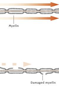 myelin sheath 200